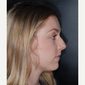 18-24 year old woman treated with Nose Surgery 1 yer post-op before 3499845