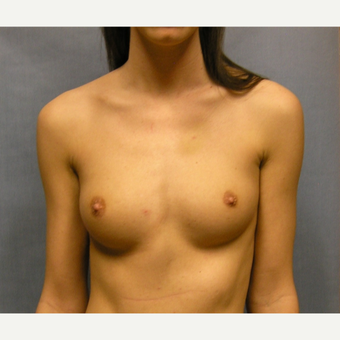 25-34 year old woman treated with Breast Augmentation before 3635927