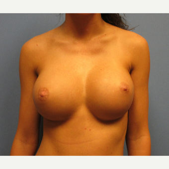 25-34 year old woman treated with Breast Augmentation after 3635927
