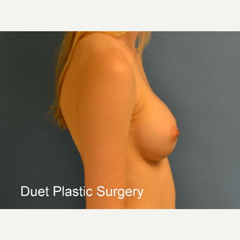 18-24 year old woman treated with Breast Augmentation after 3342236