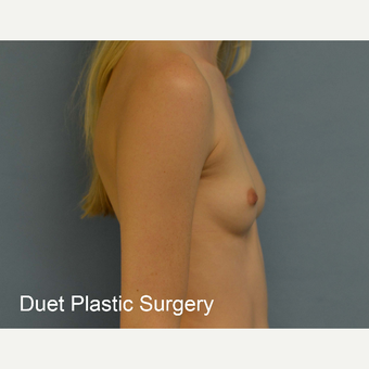 18-24 year old woman treated with Breast Augmentation before 3342236