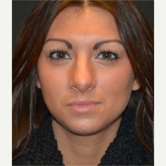 18-24 year old woman treated with Septoplasty before 1947869