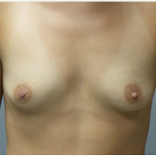 25-34 year old woman treated with Breast Augmentation before 3282307