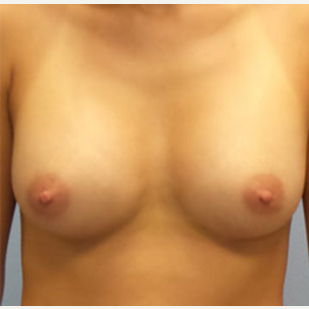 25-34 year old woman treated with Breast Augmentation after 3282307