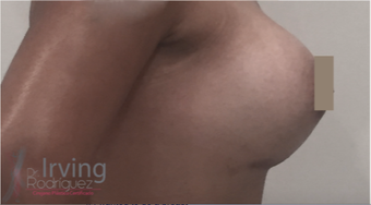 18-24 year old woman treated with Breast Augmentation after 3815499
