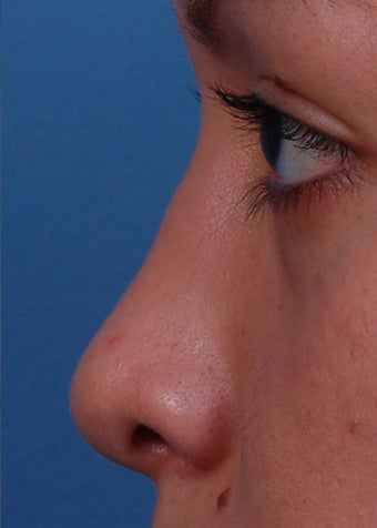 18-24 year old woman treated with Rhinoplasty after 2107973