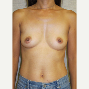 45-54 year old woman treated with Breast Reconstruction before 3502552