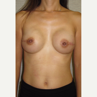 45-54 year old woman treated with Breast Reconstruction after 3502552
