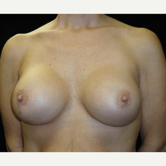 35-44 year old woman treated with Breast Lift with Implants after 3823189