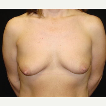 35-44 year old woman treated with Breast Lift with Implants before 3823189