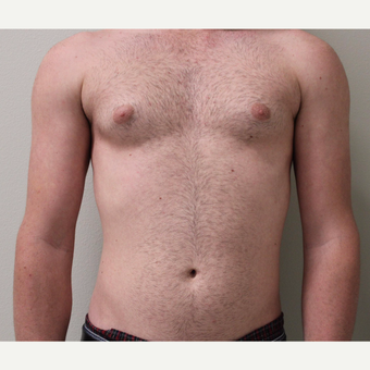 18-24 year old man treated with Male Breast Reduction before 3065934