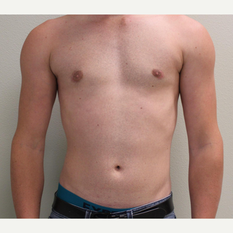 18-24 year old man treated with Male Breast Reduction after 3065934