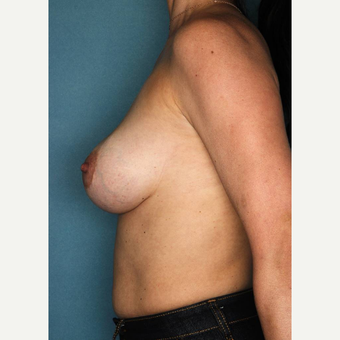 35-44 year old woman treated with Breast Implant Revision before 3289229