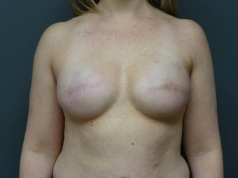 42yo, breast cancer reconstruction after 1244392