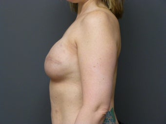 42yo, breast cancer reconstruction 1244392