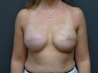 42yo, breast cancer reconstruction before 1244392