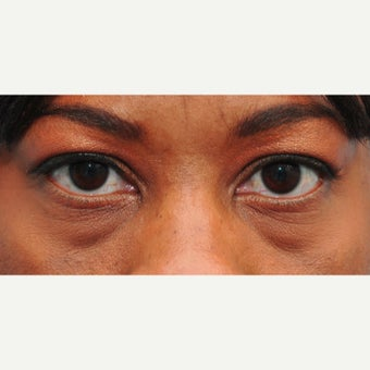 Restylane can improve dark circles, hollowness, and fat pockets in the lower eyelids before 2345294