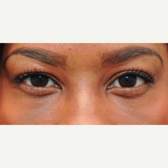 Restylane can improve dark circles, hollowness, and fat pockets in the lower eyelids after 2345294