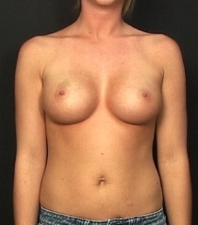 Endoscopic transaxilary submuscular breast augmentation through the underarm with no scar on her breast after 1516933