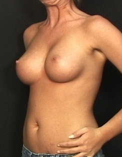 Endoscopic transaxilary submuscular breast augmentation through the underarm with no scar on her breast 1516933