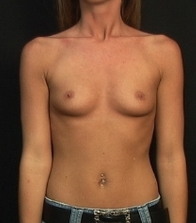 Endoscopic transaxilary submuscular breast augmentation through the underarm with no scar on her breast before 1516933