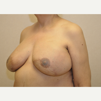 65-74 year old woman treated with Breast Reconstruction after 3127857