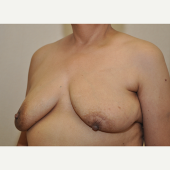 65-74 year old woman treated with Breast Reconstruction before 3127857