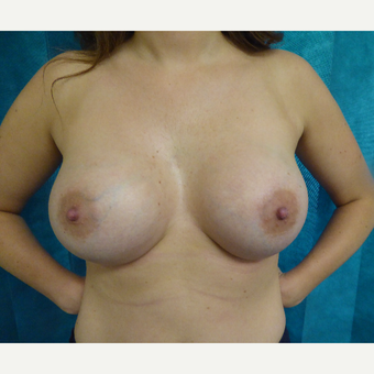 25-34 year old woman treated with Breast Augmentation after 3375589