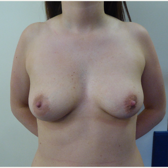25-34 year old woman treated with Breast Augmentation before 3375589