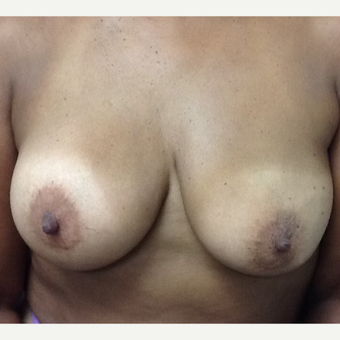 45-54 year old woman treated with Breast Implant Revision before 3523741