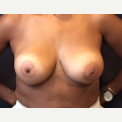 45-54 year old woman treated with Breast Implant Revision after 3523741