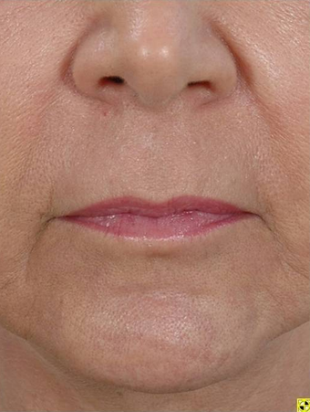Fractional Resurfacing after 230841