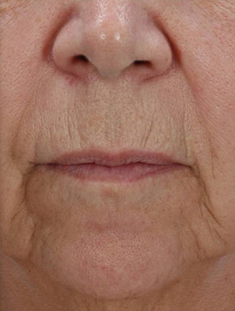 Fractional Resurfacing before 230841