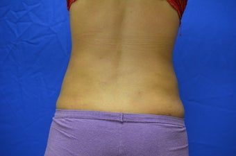 23 y/o female s/p SmartLipo treatment to abdomen/flanks 1015929