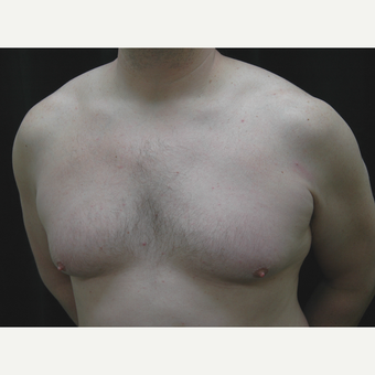 35-44 year old man treated with Male Breast Reduction before 3181910