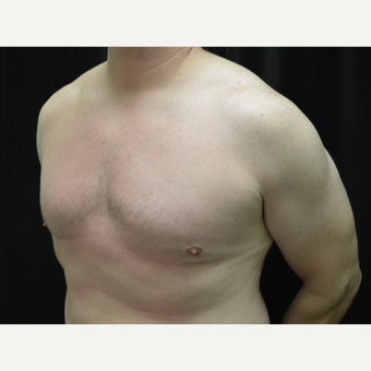 35-44 year old man treated with Male Breast Reduction after 3181910