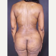 55-64 year old woman treated with Liposuction after 3497803