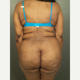 55-64 year old woman treated with Liposuction before 3497803