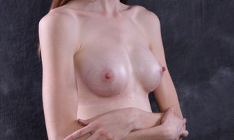 Breast augmentation SLC Utah with gummy bear implants  after 1130222