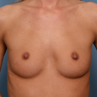 25-34 year old woman treated with Breast Implants before 3022196
