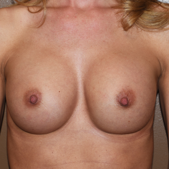 25-34 year old woman treated with Breast Implants after 3022196