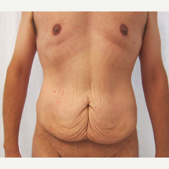 25-34 year old man treated with Tummy Tuck before 3297982