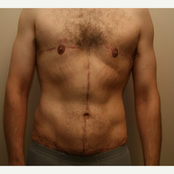 25-34 year old man treated with Tummy Tuck after 3297982