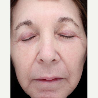 68 year old woman treated with Halo Laser after 3656509