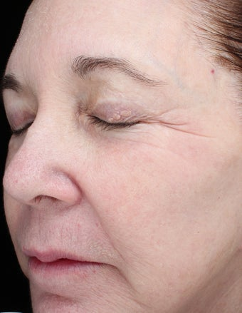 68 year old woman treated with Halo Laser 3656509
