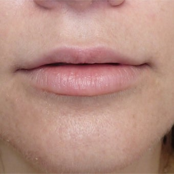 35-44 year old woman treated with Lip Lift before 1695212
