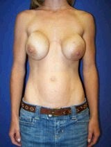 Breast Revision Surgery with Lift and Silicone-Gel Implants