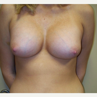 18-24 year old woman treated with Breast Augmentation after 3576145