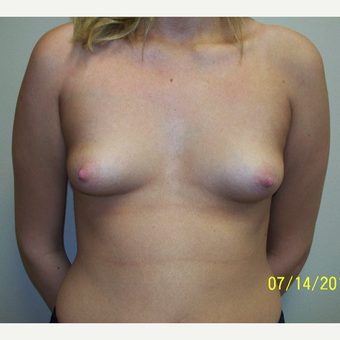18-24 year old woman treated with Breast Augmentation before 3576145