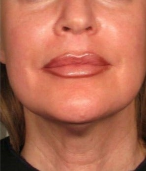 45-54 year old woman treated with Ultherapy after 2180858